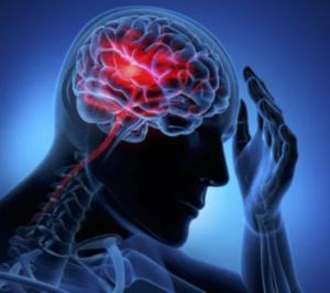 Video – A person having a stroke